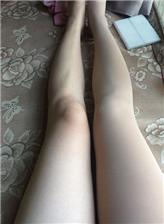 女生腿部淤青图片